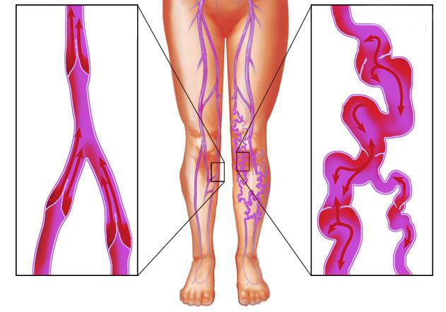 Варикоз у беременных на ногах