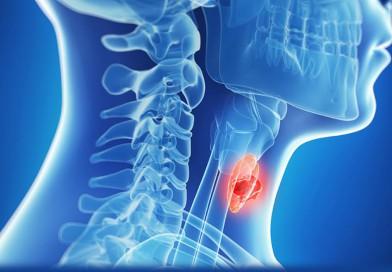 Заболевания щитовидной железы. Вопрос-ответ
