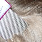 Как избавиться от гнид на длинных волосах ?