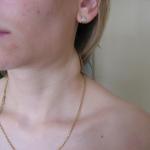 Расположение лимфоузлов на шее (27 фото)
