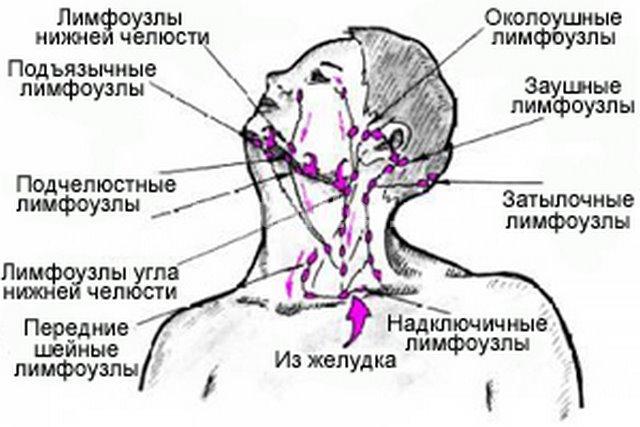 воспаленный лимфоузел
