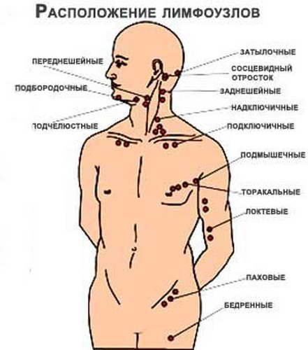 Миокардит классификация диагностика лечение